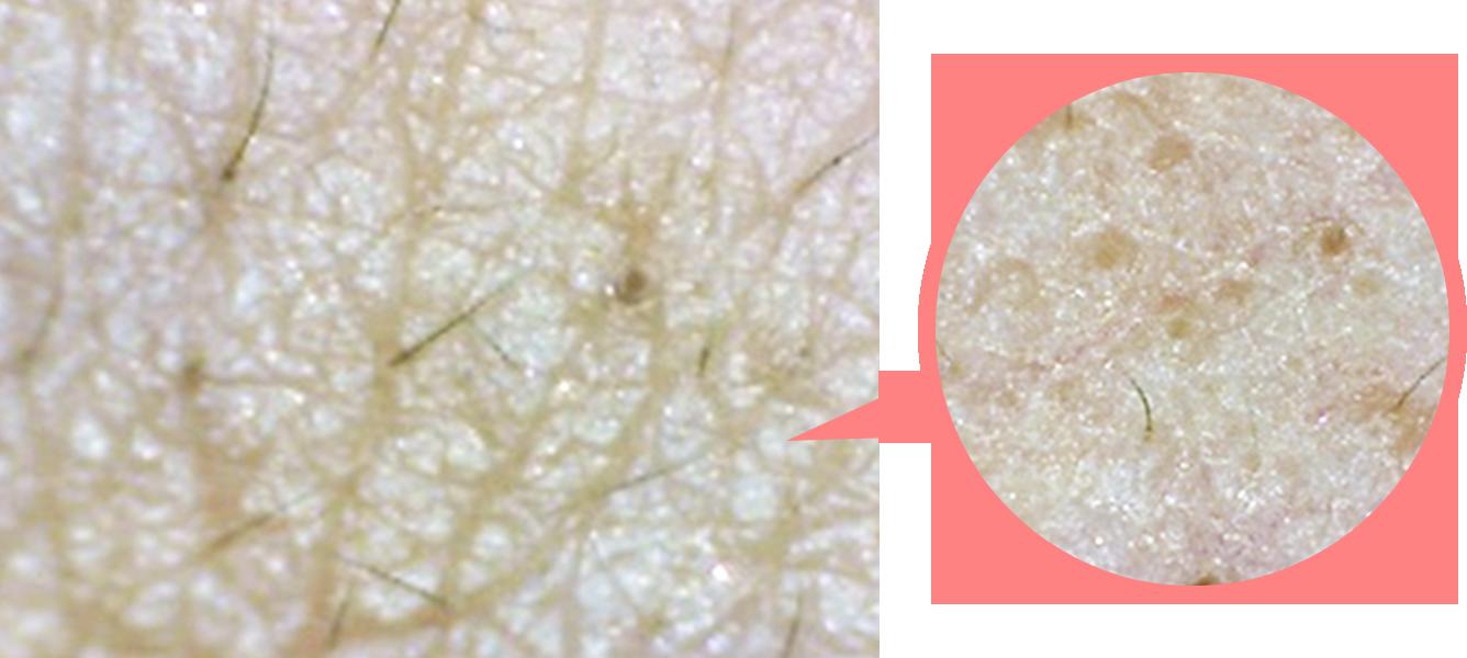 一見きれいに見える部分も、しっかりと広げて見てみると、毛穴汚れ・詰まりが見られます。